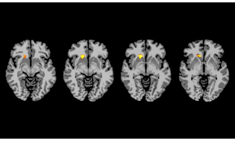Brain scans show why some type 1 diabetics miss low blood sugar cues