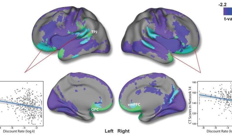 Brain thickness provides insight into teenage decision-making