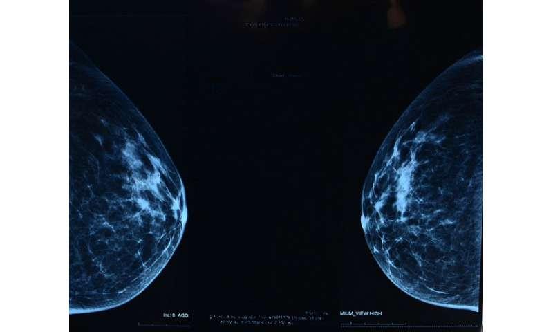 Breast screening error—women need reassurance, not misleading statistics