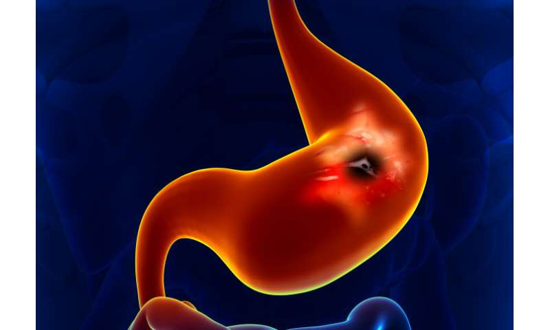 Breath test breakthrough for early diagnosis of oesophageal and gastric cancer
