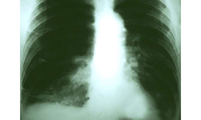Cancer drug keytruda a new weapon against advanced lung tumors