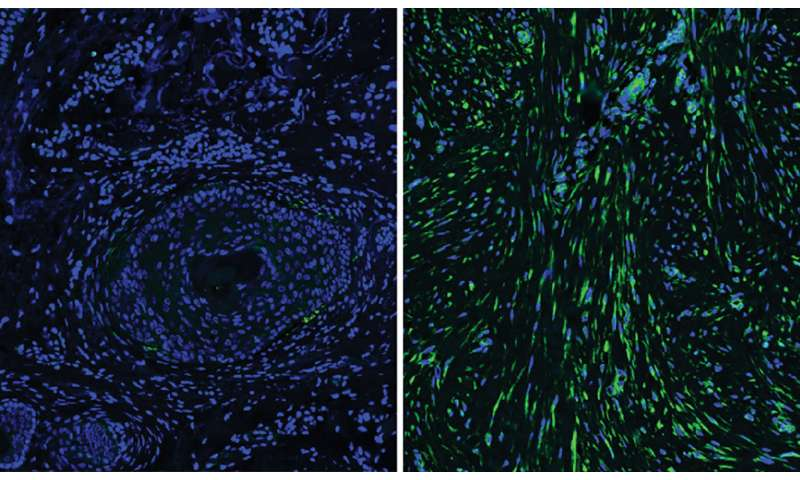Cells beneath the skin explain differences in healing