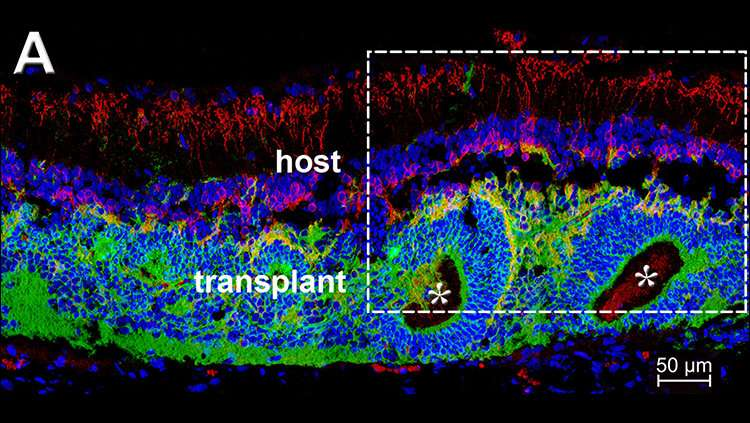 Cell transplant restores vision in rats