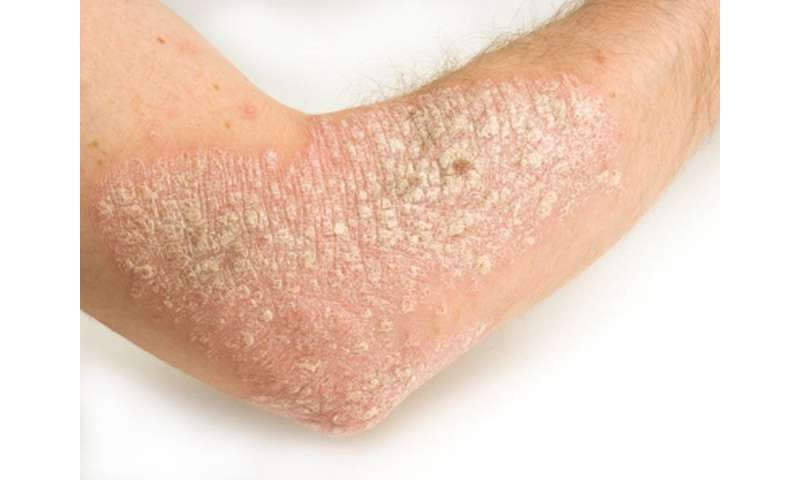 Certolizumab looks promising for moderate-to-severe psoriasis