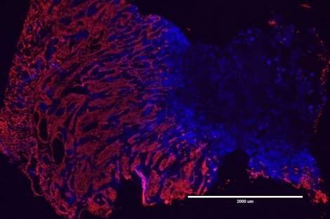 Chronic inflammation can trigger cancers via newly discovered mechanism
