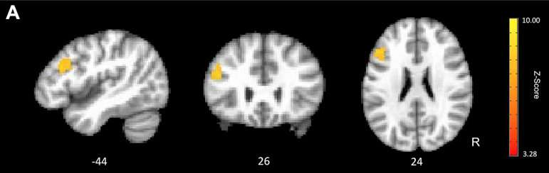 Cognitive training helps regain a younger-working brain
