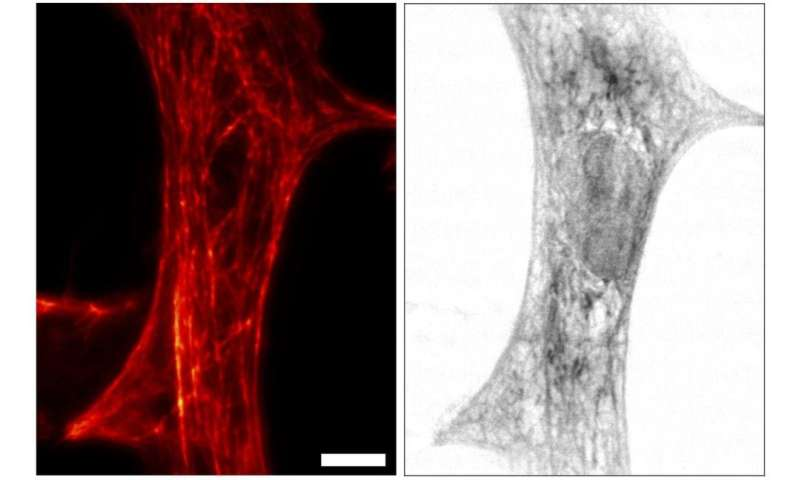 Combined X-ray and fluorescence microscope reveals unseen molecular details