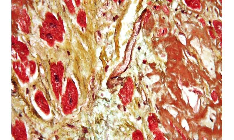 Complex diseases get the big data treatment