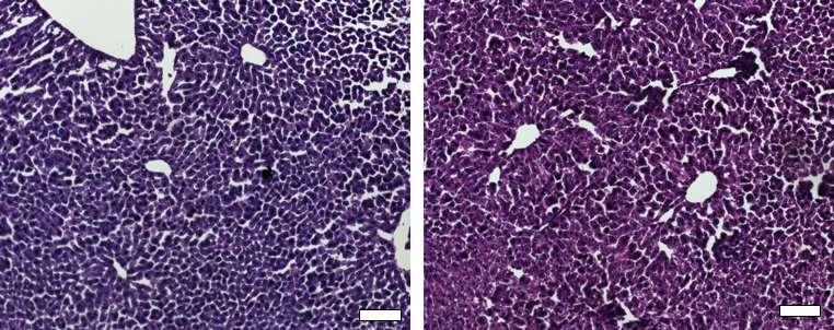 CRISPR/Cas9 silences gene associated with high cholesterol