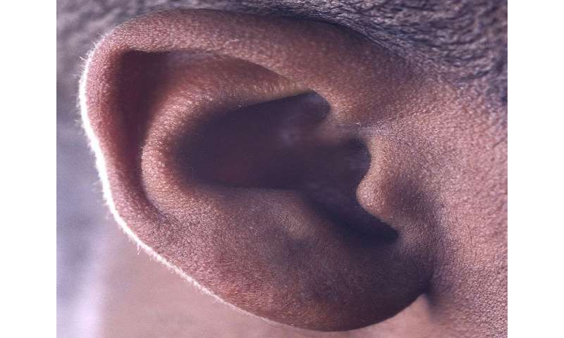 Cystatin C tied to cumulative hearing impairment