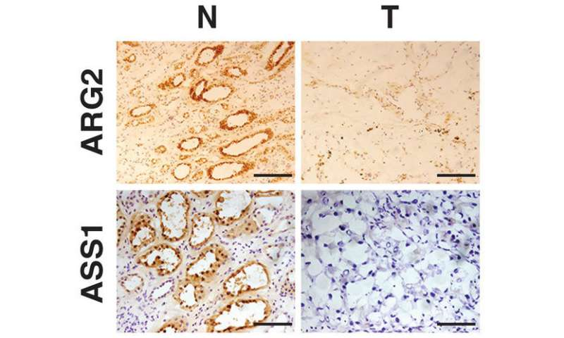 Depleted metabolic enzymes promote tumor growth in kidney cancer