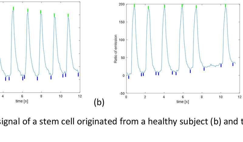 Diagnostics of genetic cardiac diseases using stem cell-derived cardiomyocytes