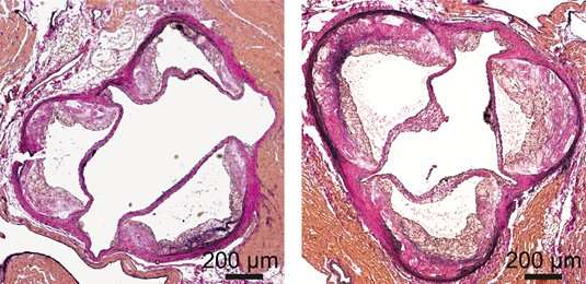 Dicer enzyme cuts down on fats