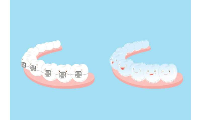 DIY braces? Orthodontists say to think twice before straightening your teeth solo