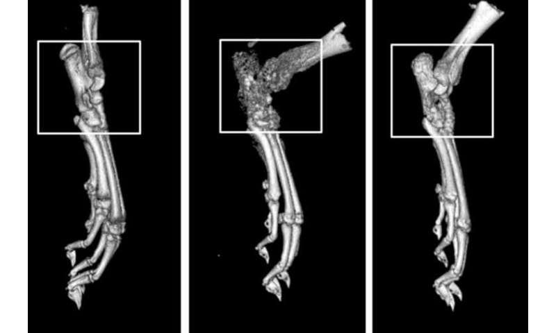 Drug compound shows promise against rheumatoid arthritis