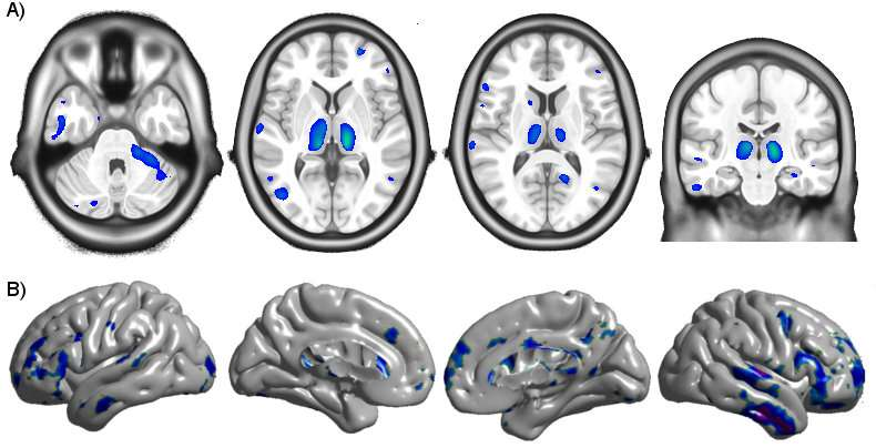 Early HIV treatment key to avoiding brain atrophy