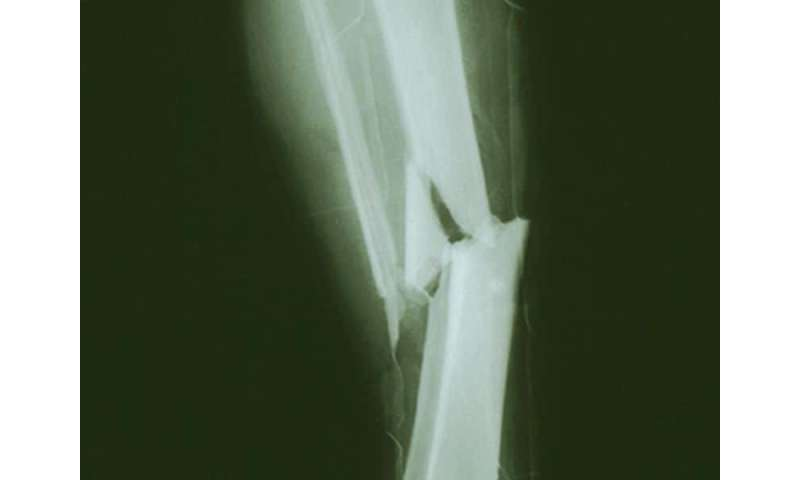 Empagliflozin doesn't up risk of bone fractures