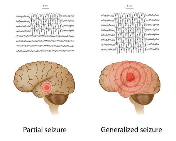 Epileptic seizures and depress...