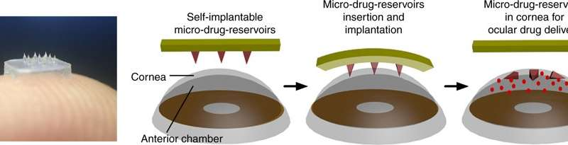 Eyepatch with dissolvable needles used to treat eye disease