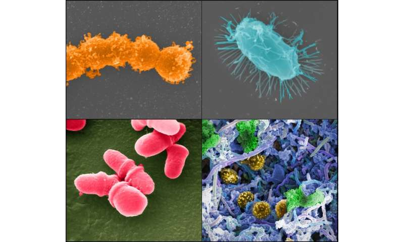 Fecal microbiota transplantation helps restore beneficial bacteria in cancer patients