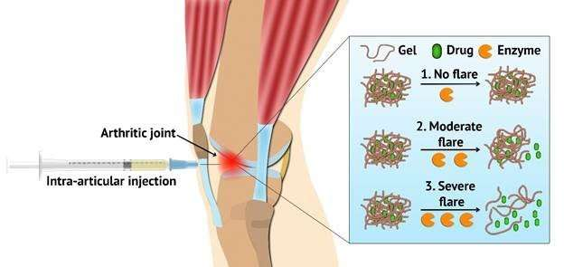 Flare-responsive hydrogel developed to treat arthritis