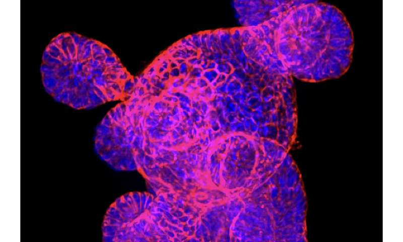 From designer microbes to stem cells, researchers are investigating new strategies to treat bowel disease
