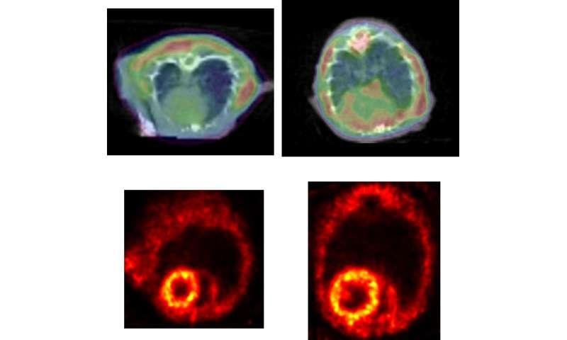 Heart failure—the Alzheimer's disease of the heart?
