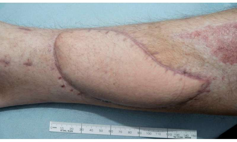High-tech treatment of open leg wounds no better than using regular dressings