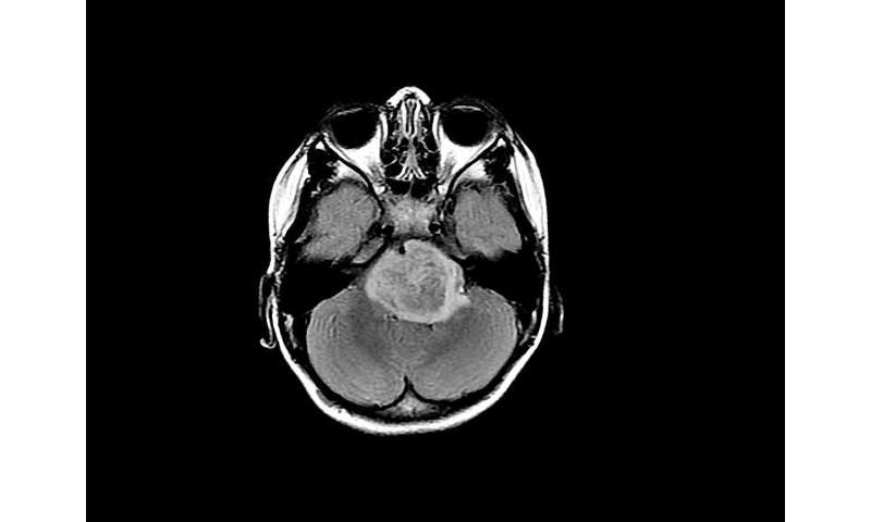 How man and machine can work together to diagnose diseases in medical scans