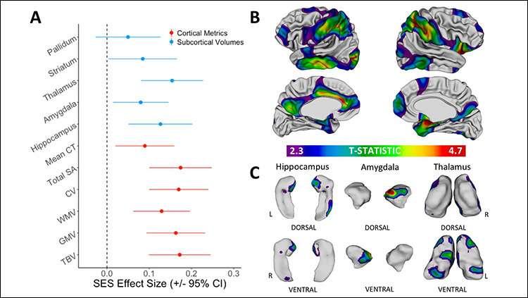 How socioeconomic status shapes developing brains