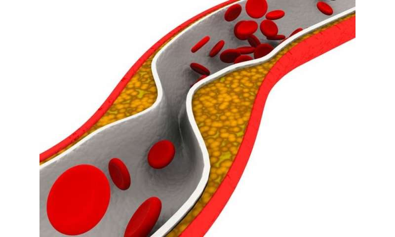 Idiopathic thrombocytopenic purpura tied to higher CVD risk
