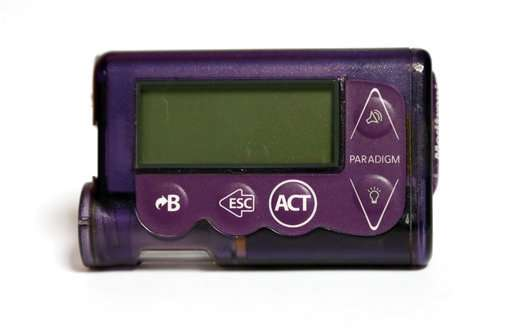 Insulin pumps have most reported problems in FDA database