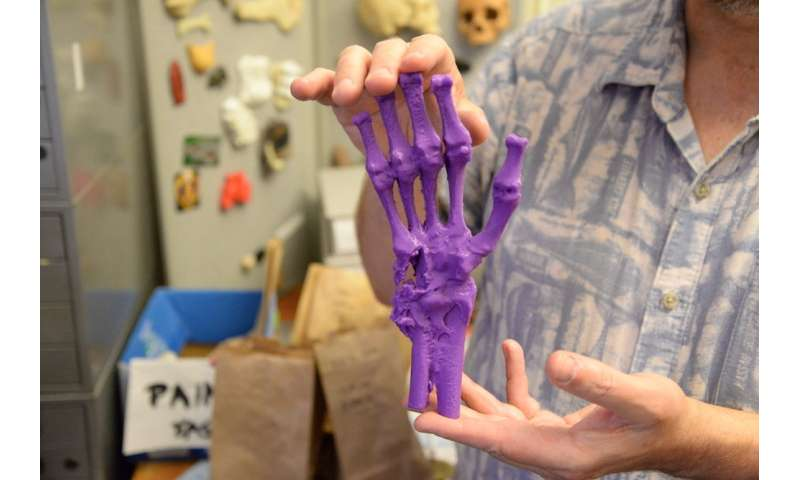 Lab 3-D scans human skeletal remains dating back to the civil war