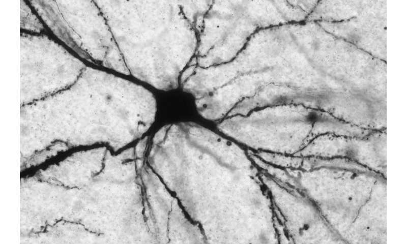 Lack of a single molecule may indicate severe and treatment-resistant depression