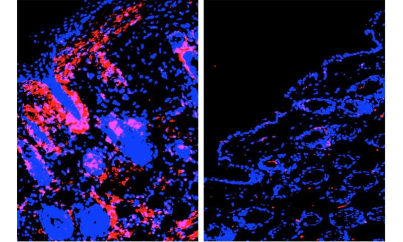 LJI researchers discover key driver of atopic dermatitis