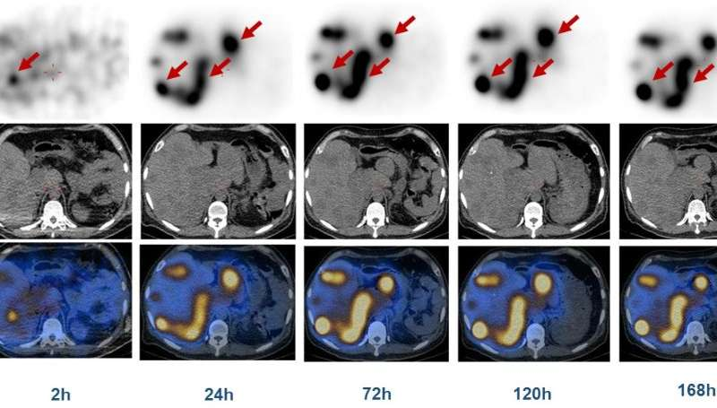 Long-lasting radionuclide therapy for advanced neuroendocrine tumors proves effective