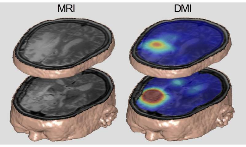 Mapping metabolism with a Yale-developed imaging technique
