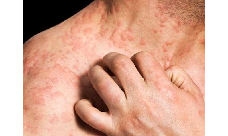 Mean cumulative lifetime prevalence of eczema 9.9 percent