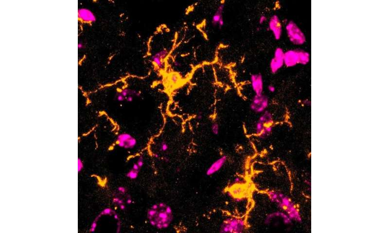 Microglia react distinctively during inflammation