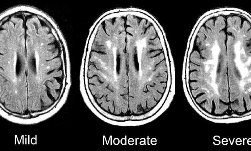 Mid- to late-life increases in marker of chronic inflammation tied to dementia
