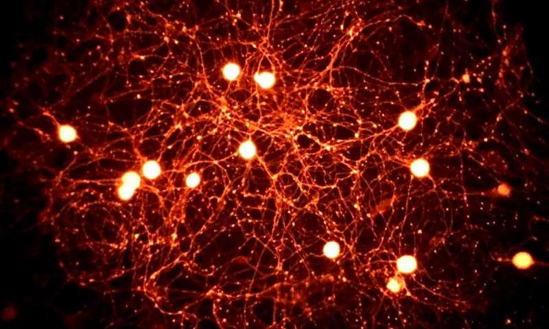 Molecule may be key to pain relief in diabetic neuropathy
