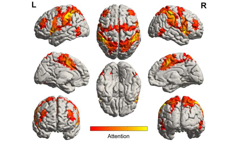 Music Activates Regions Of The Brain Spared By Alzheimers Disease