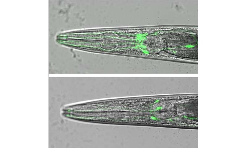 Mutation of worm gene, swip-10, triggers age-dependent death of dopamine neurons