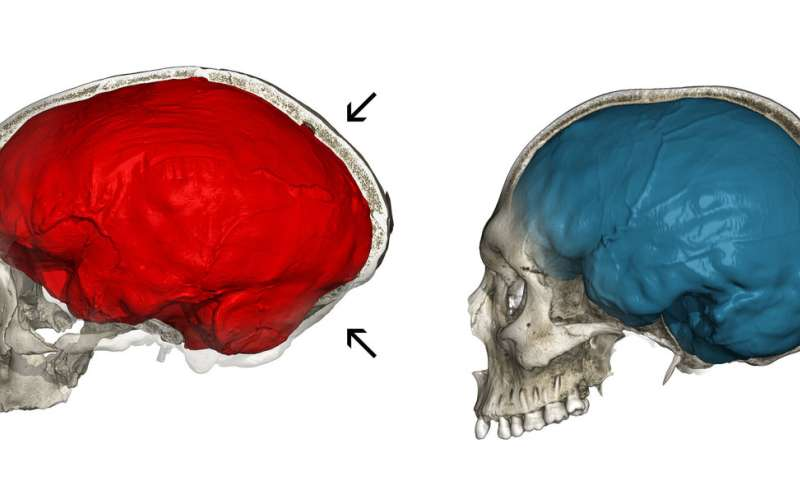 Genes Impact Suspect Cortex Areas More >> Neandertal Genes Shed Light On Unique Aspects Of The Modern Human Brain