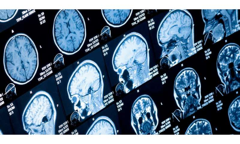 New brainstem changes identified in Parkinson's disease