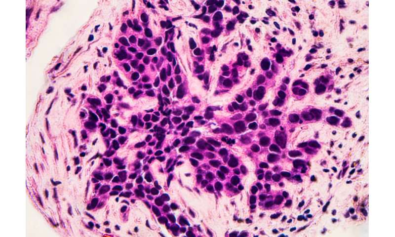 New class of drugs could help tackle treatment-resistant cancers