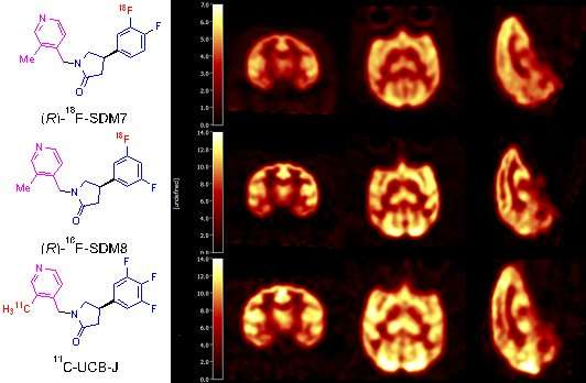 Novel nuclear medicine probe will help assess new drugs for neurodegenerative diseases