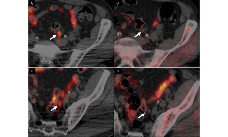 Novel PET imaging agent targets copper in tumors, detects prostate cancer recurrence early