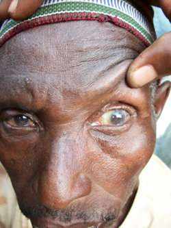 Patient refusal for trichiasis surgery in Tanzania based on misconception of recovery time