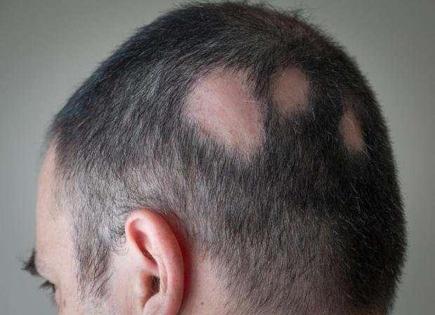 Hair Loss: mango seed health benefits